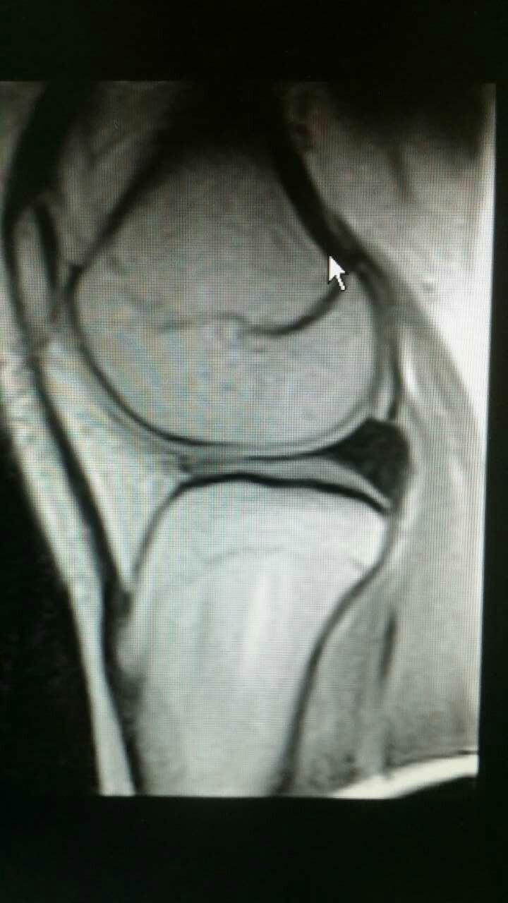 汤--膝关节半月板损伤病例