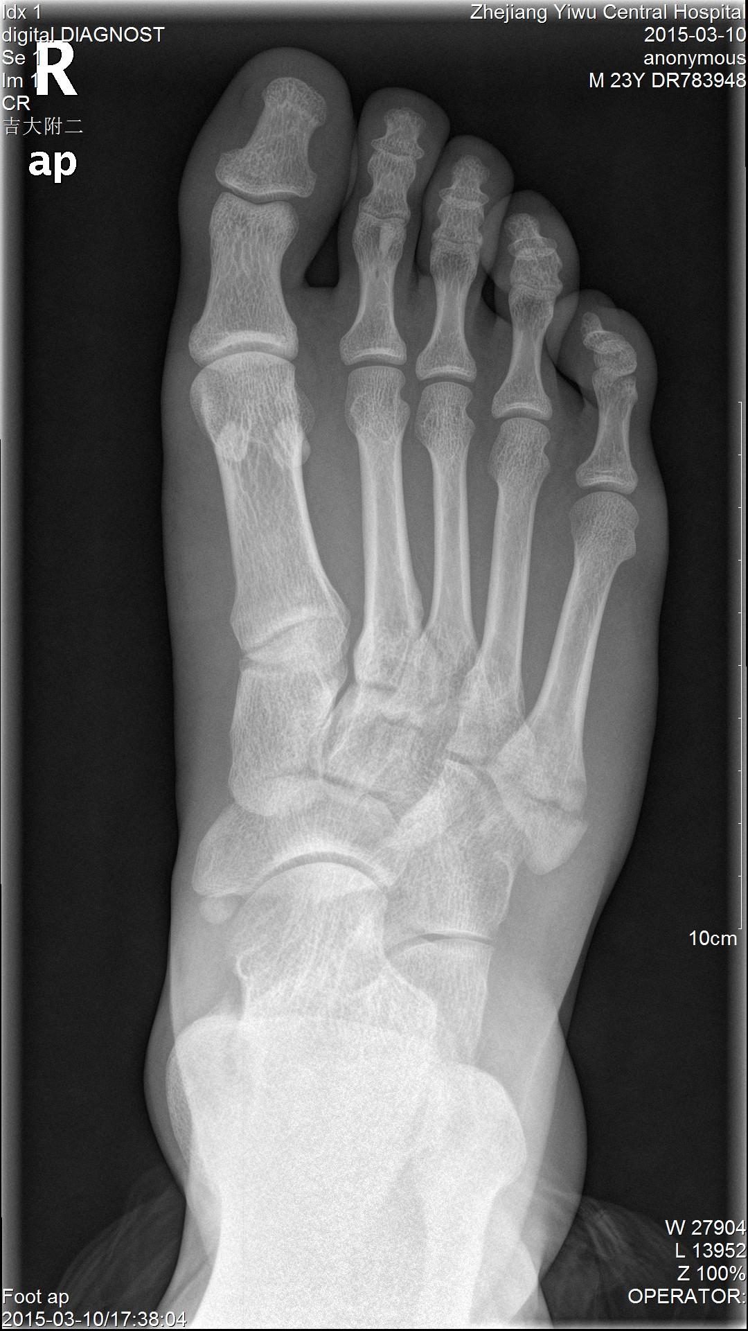 第五跖骨基底骨折,没手术能不能评上工伤等级鉴定