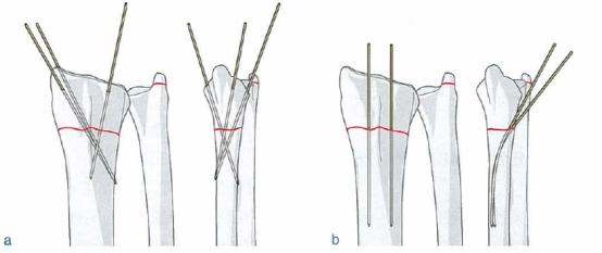 �^4獼���x�o_只有少量短缩或者像背侧移位的稳定性干骺骨折端骨折可用管型石膏