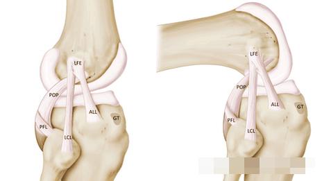 合并all损伤的患者,膝关节较单纯前交叉韧带损伤者
