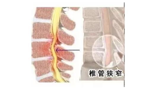X线检查:要求常规拍摄站立位全脊柱像。退变性脊柱侧弯是很明确的,伴有孤立性腰椎侧弯和椎间盘退行性变。在一些患者中,可出现正常腰椎前凸的减小和明显的腰椎旋转半脱位,并伴有不同程度的椎体侧方移位。在制定手术计划时,侧屈位片可提供更多的信息。屈-伸位侧位片可显示腰椎不稳。Ferguson前后位影像可显示腰骶关节显著的退行性改变,并可更好地显示L5的横突。存在横突发育不全时也提示要考虑进行椎间融合,因为在这种情况下进行横突间植骨,其植骨床太小,尤其是在腰骶融合时。  CT、MRI检查:可以对椎管内径、脊髓和神经根