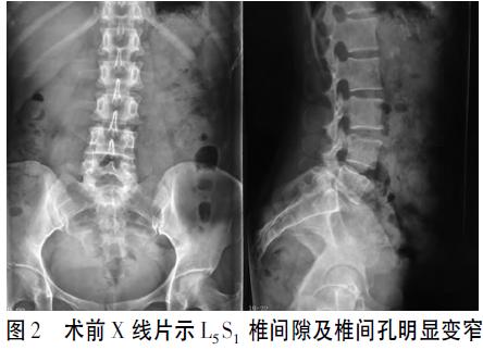 单侧椎弓根螺钉固定联合椎间融合术治疗腰椎间盘突