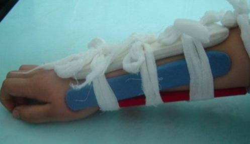 孩子橈骨骨折后畸形