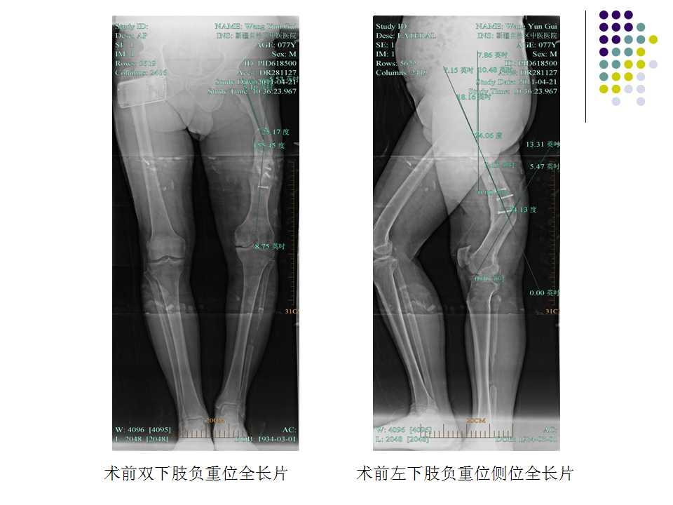 全膝关节置换术手术成功的关键在于精确的截骨,良好的软组织平衡以及