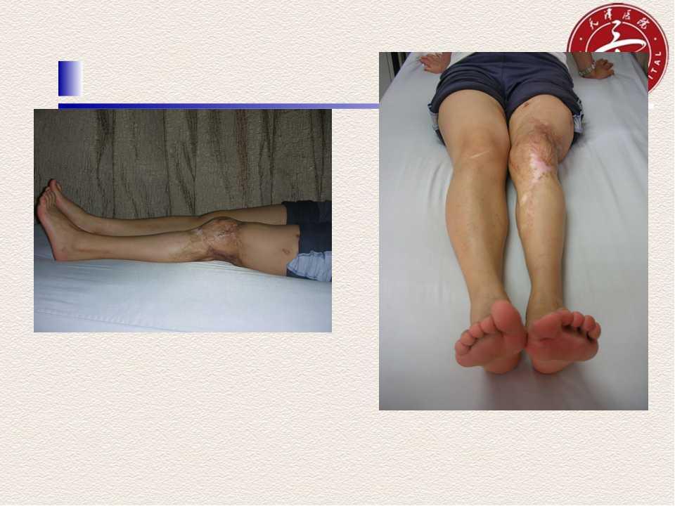 合节镜下膝合节死板松解术