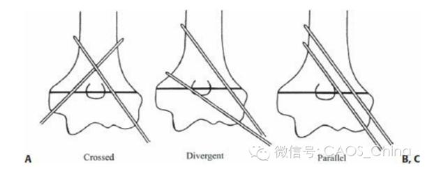 图2. 克氏针固定的三种方式:A:交叉克氏针;B:成角克氏针;C平行克氏针 Bloom等研究发现从外侧打入三枚成角克氏针的强度与内外各一枚交叉克氏针的强度相似,均强于外侧两枚平行克氏针的强度。Feng等研究发现外侧成角两枚和三枚克氏针的强度相当,且均强于内外交叉克氏针,内外交叉克氏针仅仅在外翻强度上优于外侧克氏针。因此,从目前的生物力学试验结果来看,支持外侧成角克氏针固定。 Skaggs等针对外侧进针的研究结果提示了外侧进针的技术要点: 1.