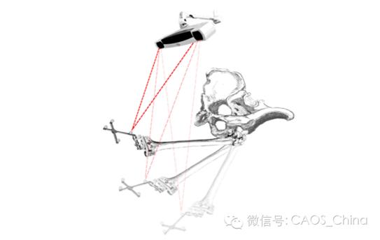 人工全膝关节置换与下肢力线重建:膝关节旋转对线篇-骨医小灶第六期iv