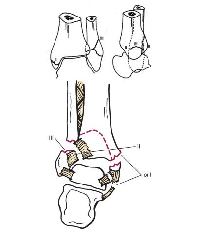 如何正确认识踝关节骨折的Lauge-Hansen分型? - 小骨头 - 小骨头的博客