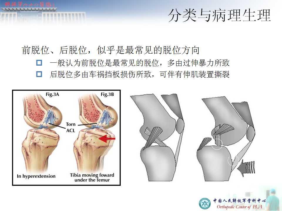 膝关节多韧带损伤 -医学文章-唯医