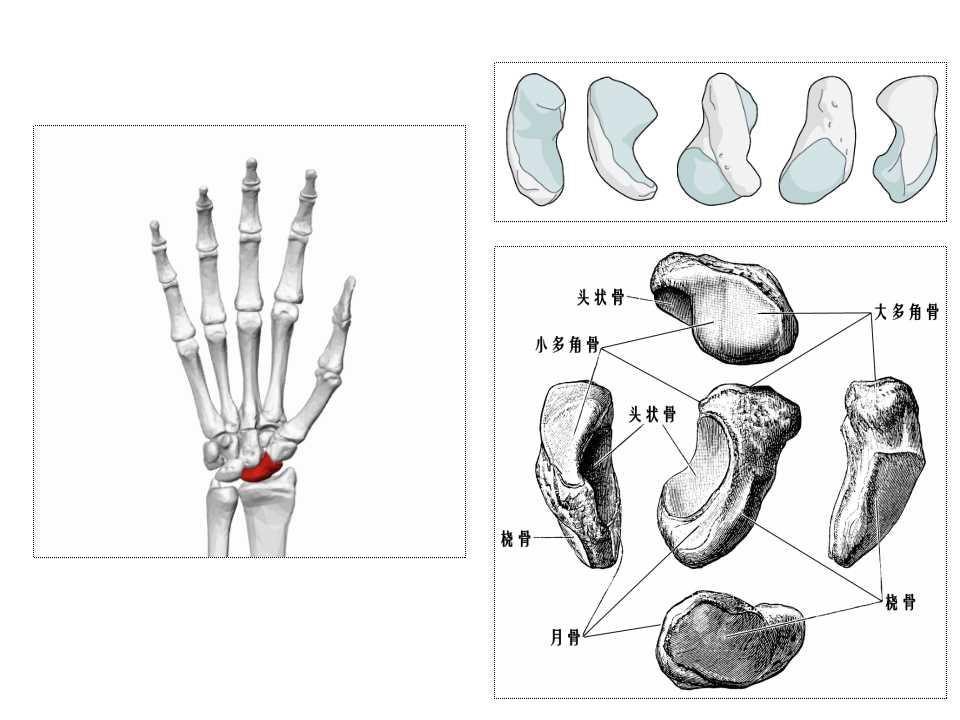 本文简介由【郎跃忠--苏州高新区人民医院】撰写:陈旧性腕舟骨是伤后23周以后的骨折,常见的并发症是畸形愈合,迟缓愈合或 不愈合。如果发生骨不愈合通常需行手术治疗。根据骨折发生的部位是在腰部还是近端,以及有无骨坏死,手术方式可选择:如有骨坏死可选背侧入路+带血管骨移植,如无骨坏死可选掌侧入路固定(腰部骨折)或背侧入路固定(近端骨折)等方式。必要时行腕骨间融合、腕关节融合、近排腕骨切除或腕关节置换等。解放军总医院第一附属医院创伤骨科吴克俭等在本课件中给大家带来的深度讲解,详细介绍了几个经典的手术过程,图文并茂