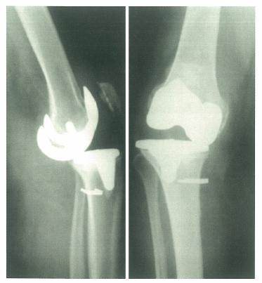 膝盖处韧带结构图