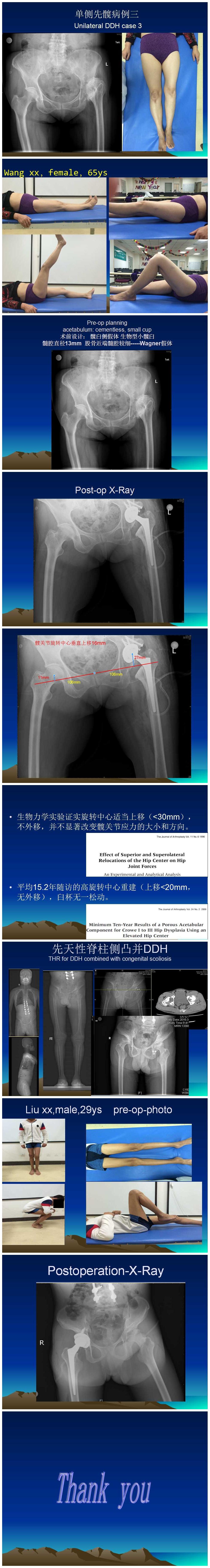 髋关节解剖结构图ppt
