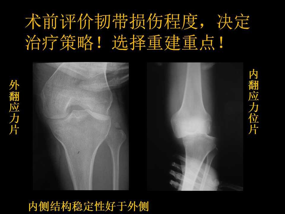 其多导致膝关节多发韧带损伤