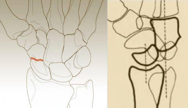 手骨解剖手绘图