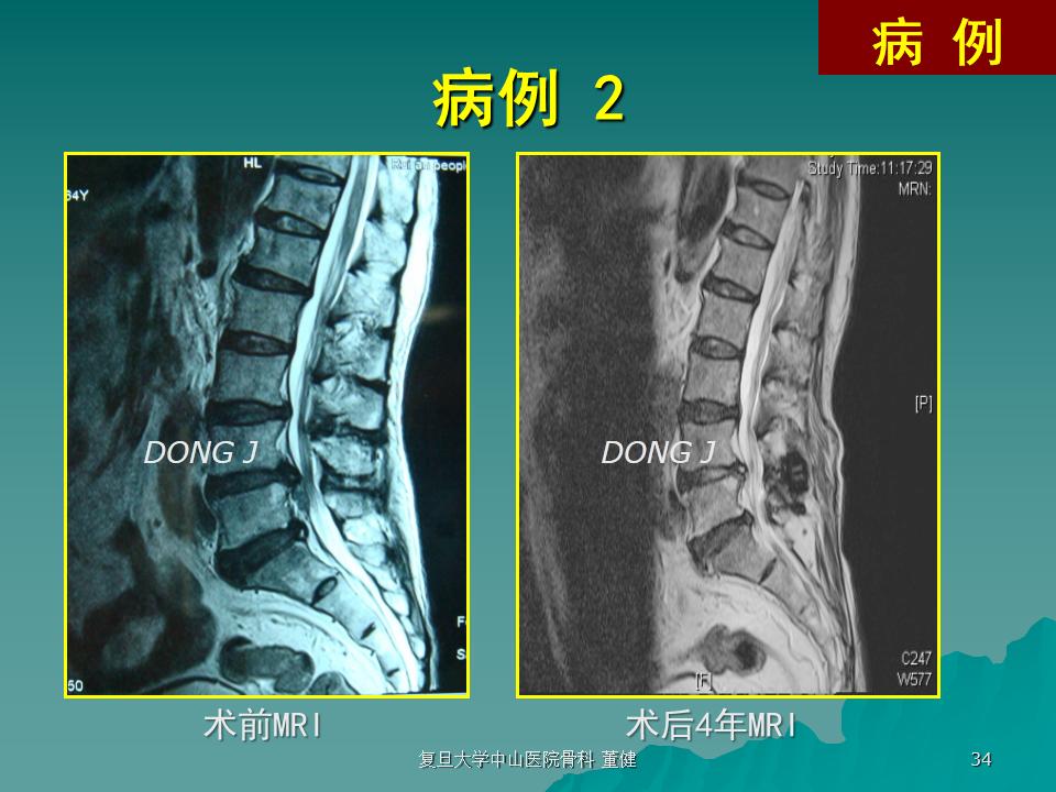 wallis治疗多节段腰椎退变性疾病的中期效果分析