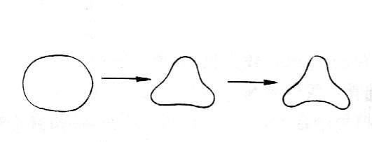脂肪变性手绘图红蓝笔