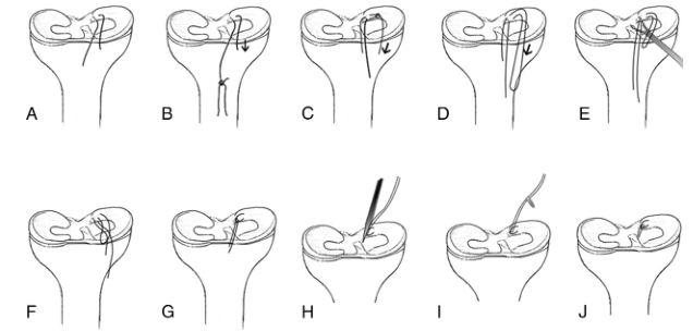 采用无结缝合锚技术行关节镜下修复内侧半月板后根部撕裂:技术要点